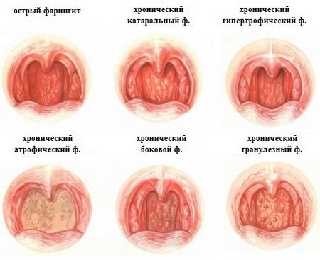 Хронический катаральный фарингит симптомы